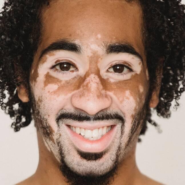 Melns vīrietis ar vitiligo ādu e-kartiņa